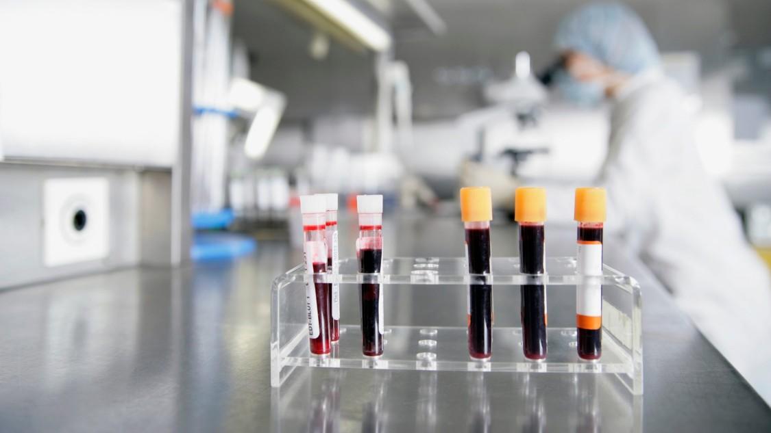血液制品要经历从血液/血浆捐献到分发,其必须进行审计追踪排除安全风险。