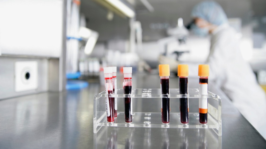 Processing steps for blood and plasma products in pharmaceutical production