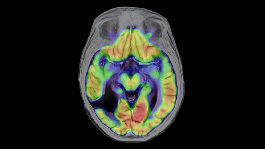 Изображение мозга человека, полученное с помощью системы ПЭТ-МРТ, 2010 год