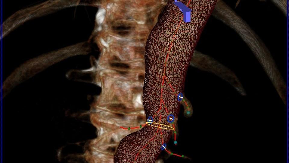 syngo EVAR Guidance: O software oferece detecção automatizada de paredes de vasos em conjuntos de dados de tomografia computadorizada (TC) e coloca pontos de referência para vasos ramificados.
